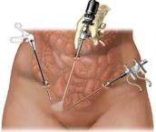 Chirurgie appendicite